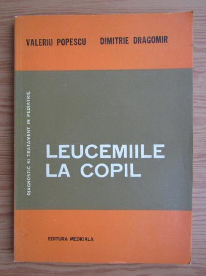 Anticariat: Valeriu Popescu - Leucemiile la copil
