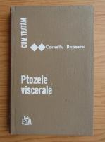 Anticariat: Corneliu Popescu - Cum tratam ptozele viscerale