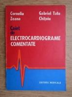 Corneliu Zeana - Caiet de electrocardiograme comentate