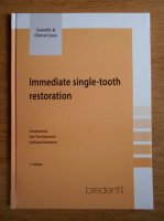 Immediate single-tooth restoration
