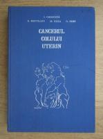 Ion Chiricuta - Cancerul colului uterin