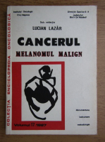 Anticariat: Lucian Lazar - Cancerul. Melanomul malign