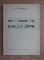 Anticariat: Mircea D. Simionescu - Aspectele anatomo-clinice ale metastazelor cerebrale